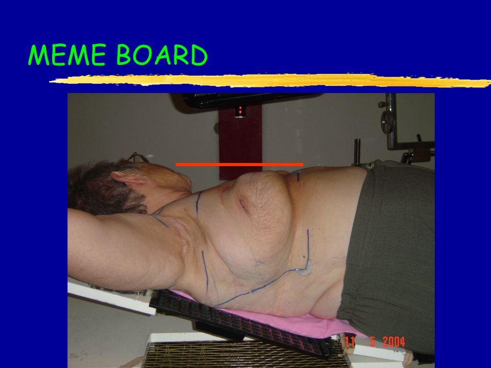 MEME BOARD