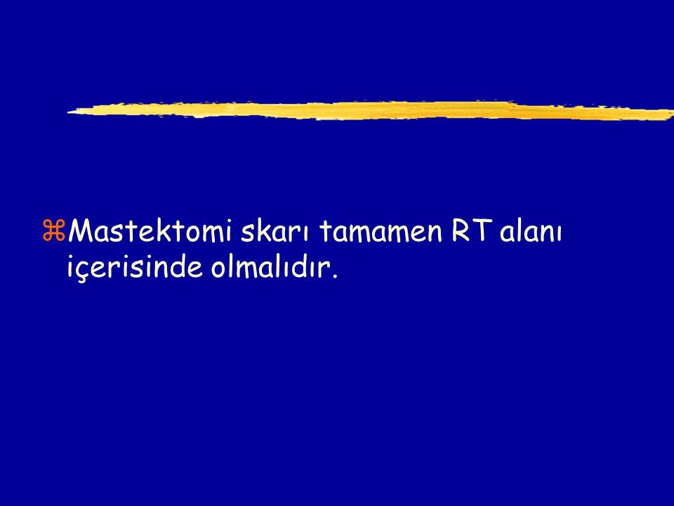 Mastektomi skarı tamamen RT alanı içerisinde olmalıdır.