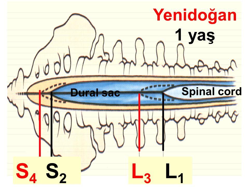 S4 S2 L3 L1 L1 Yenidoğan 1 yaş Spinal cord Dural sac