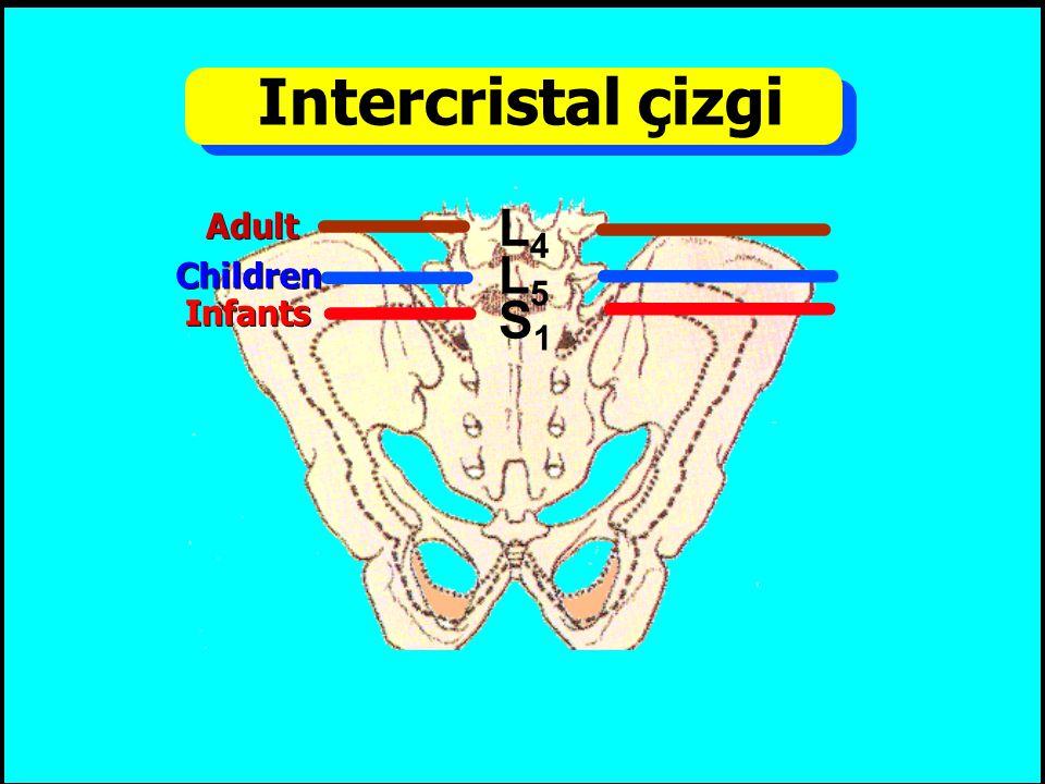 Intercristal çizgi L4 L5 S1 Adult Children Infants