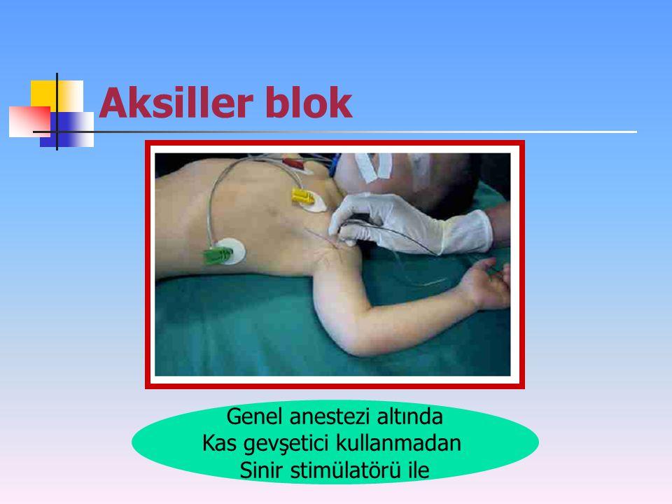 Aksiller blok Genel anestezi altında Kas gevşetici kullanmadan