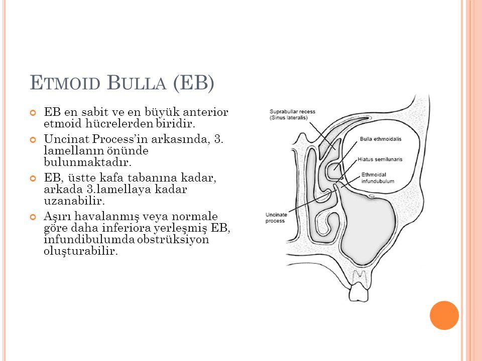 Etmoid Bulla (EB) EB en sabit ve en büyük anterior etmoid hücrelerden biridir. Uncinat Process'in arkasında, 3. lamellanın önünde bulunmaktadır.