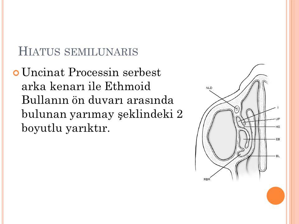 Hiatus semilunaris Uncinat Processin serbest arka kenarı ile Ethmoid Bullanın ön duvarı arasında bulunan yarımay şeklindeki 2 boyutlu yarıktır.