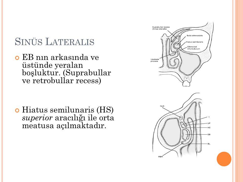 Sinüs Lateralis EB nın arkasında ve üstünde yeralan boşluktur. (Suprabullar ve retrobullar recess)