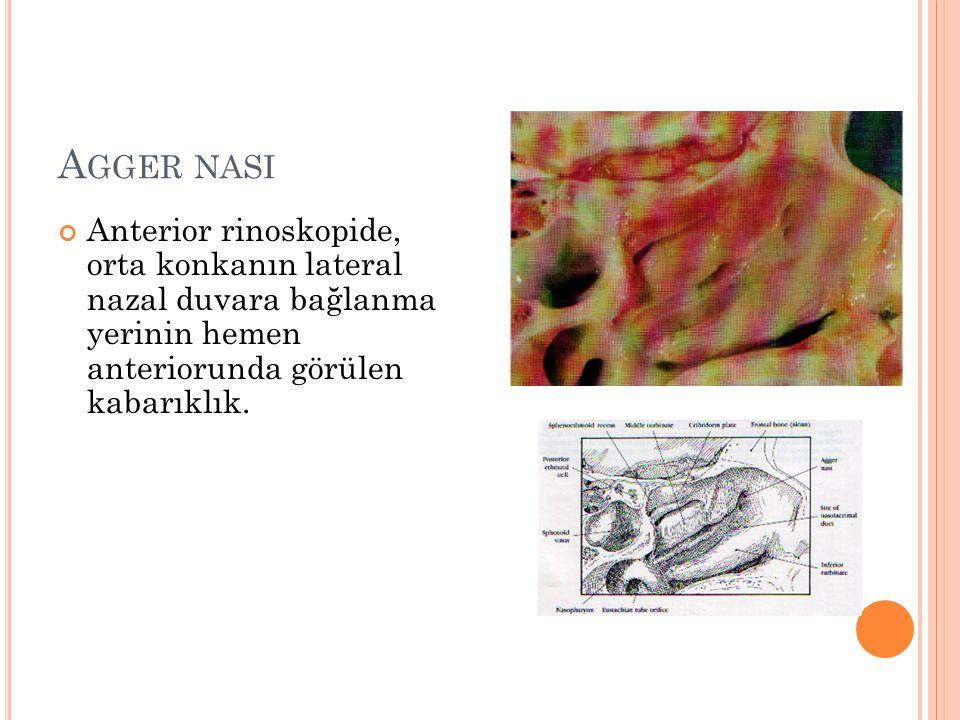 Agger nasi Anterior rinoskopide, orta konkanın lateral nazal duvara bağlanma yerinin hemen anteriorunda görülen kabarıklık.
