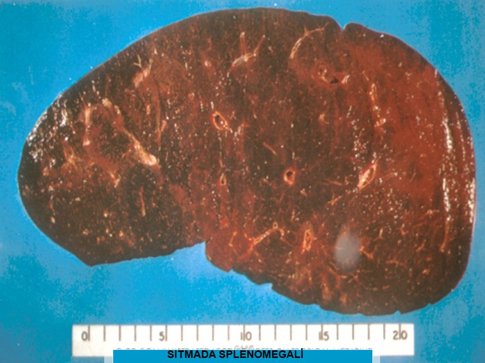 SITMADA SPLENOMEGALİ SITMADA SPLENOMEGALİ