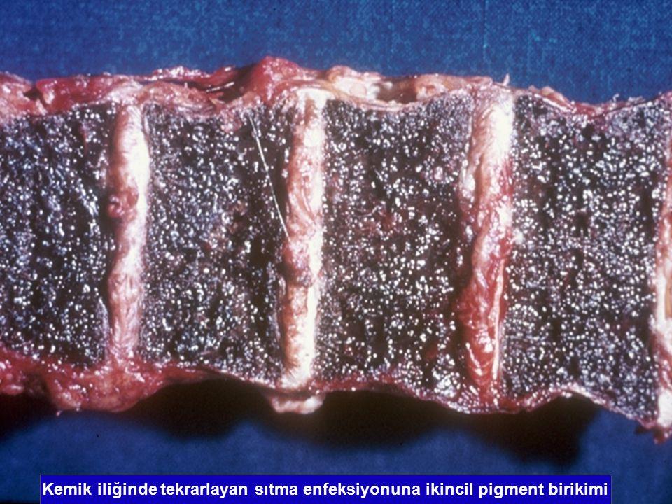 Kemik iliğinde tekrarlayan sıtma enfeksiyonuna ikincil pigment birikimi