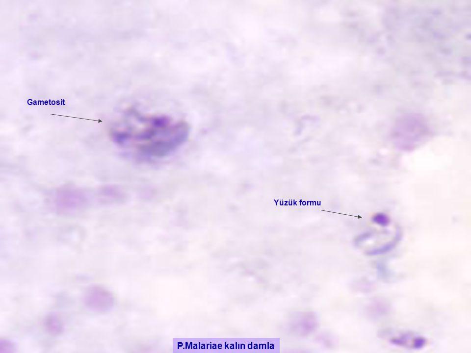 P.Malariae kalın damla Gametosit Yüzük formu