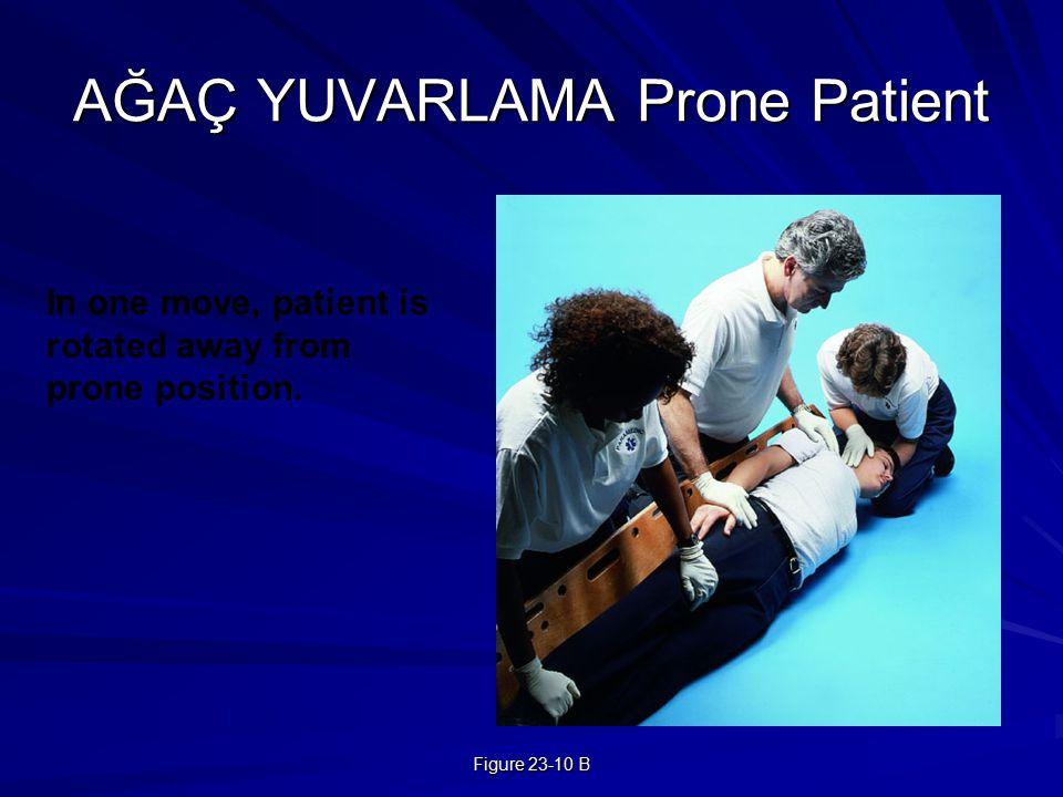 AĞAÇ YUVARLAMA Prone Patient