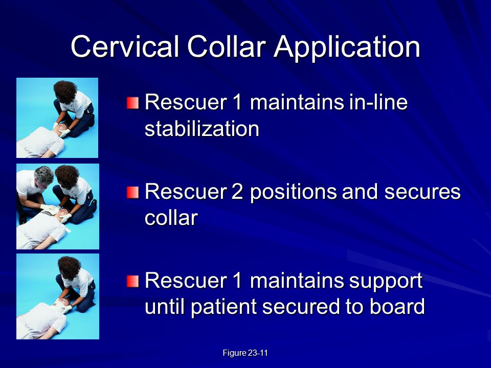 Cervical Collar Application