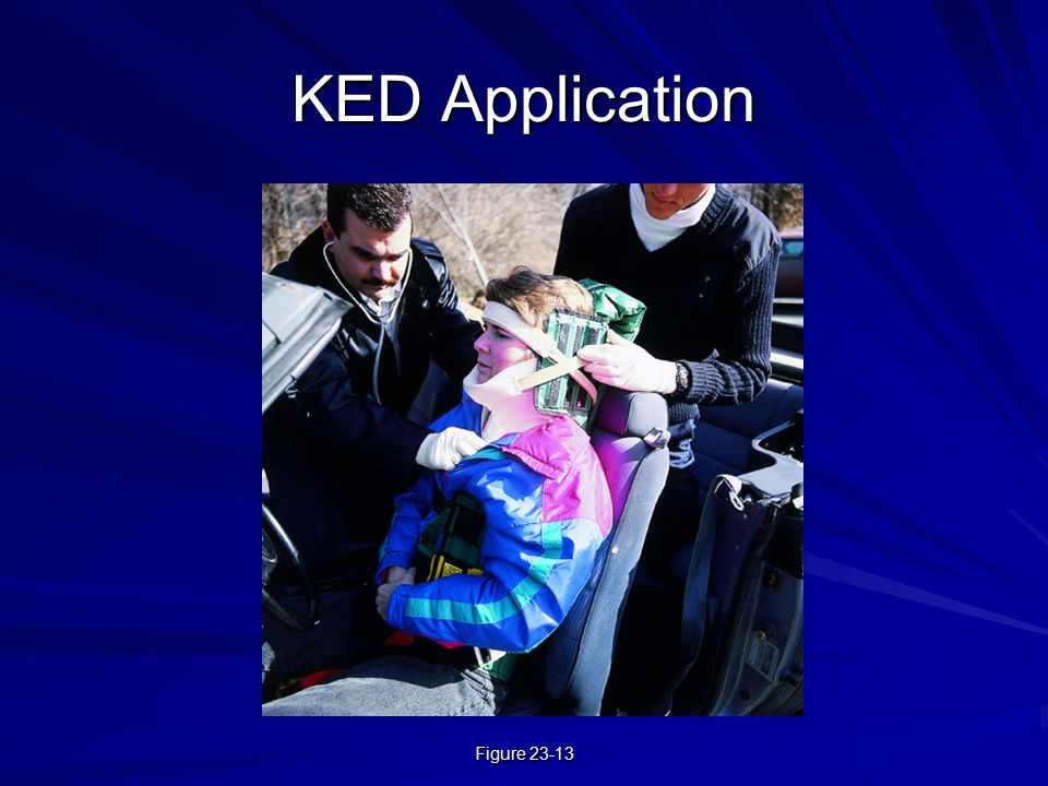 KED Application Figure 23-13 Figure 23-13