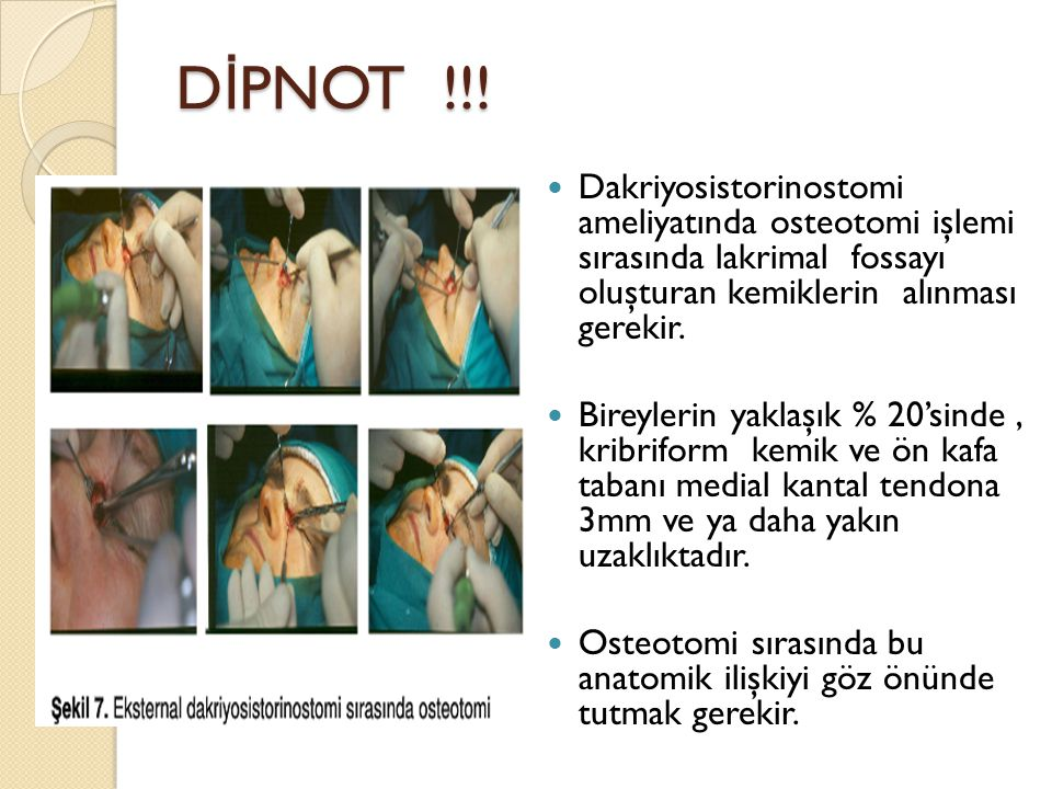 DİPNOT !!! Dakriyosistorinostomi ameliyatında osteotomi işlemi sırasında lakrimal fossayı oluşturan kemiklerin alınması gerekir.