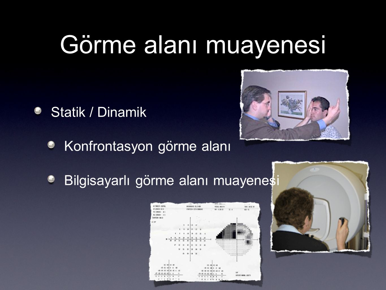 Görme alanı muayenesi Statik / Dinamik Konfrontasyon görme alanı