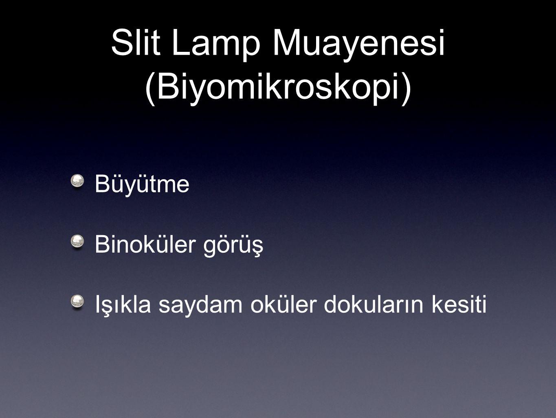 Slit Lamp Muayenesi (Biyomikroskopi)