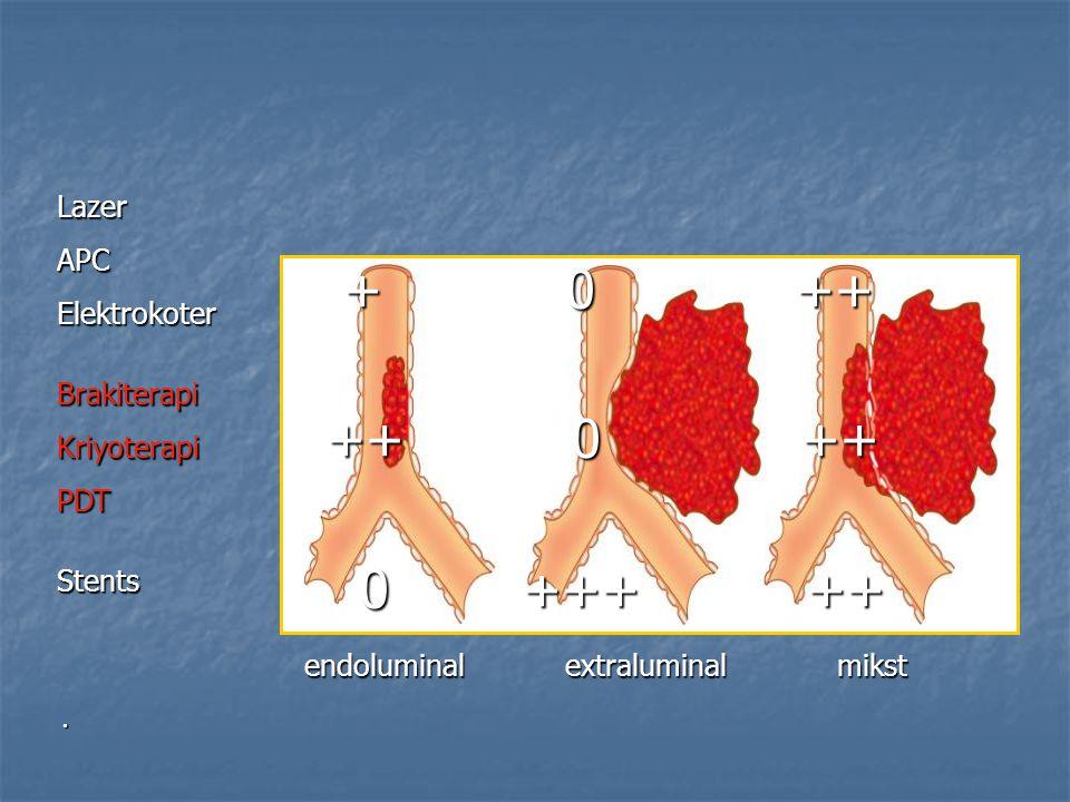 + 0 ++ ++ 0 ++ 0 +++ ++ Lazer APC Elektrokoter Brakiterapi Kriyoterapi