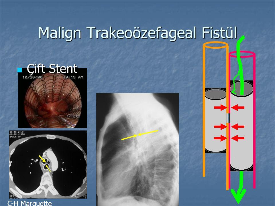 Malign Trakeoözefageal Fistül