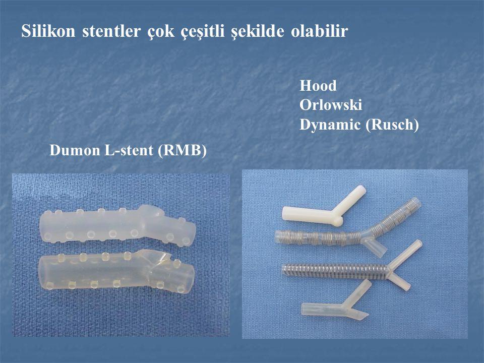 Silikon stentler çok çeşitli şekilde olabilir