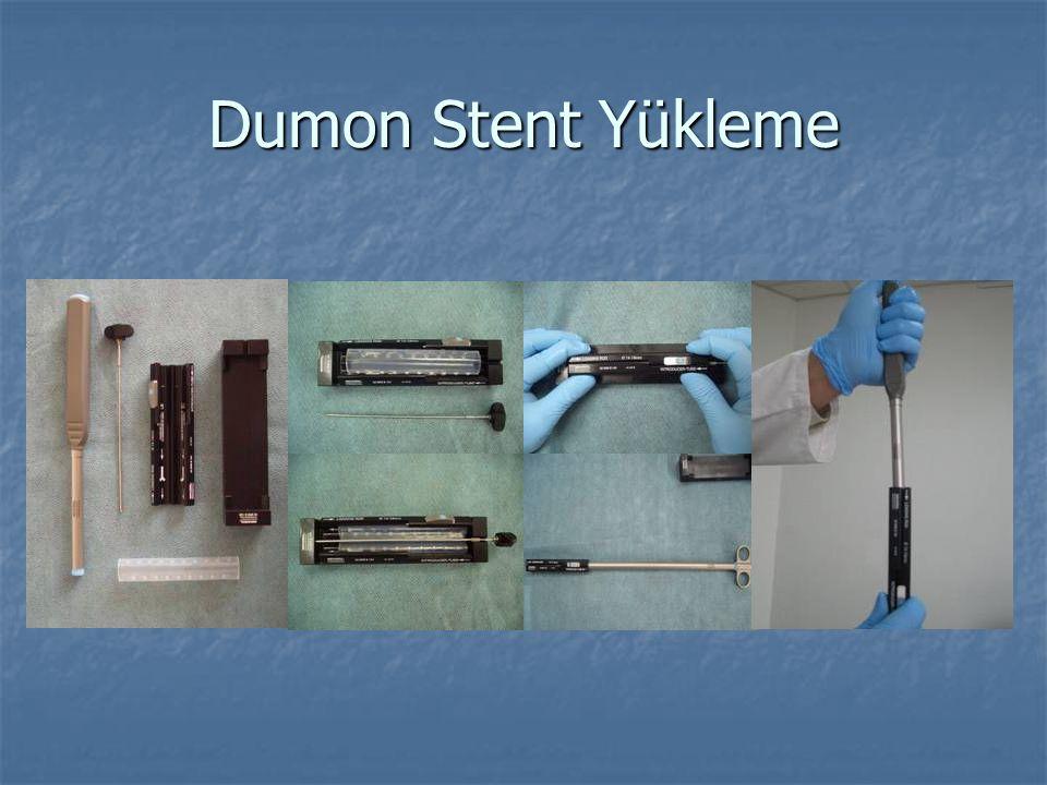 Dumon Stent Yükleme