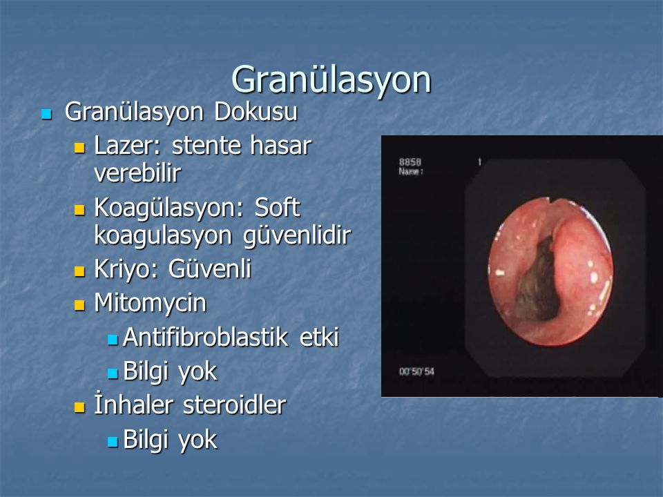 Granülasyon Granülasyon Dokusu Lazer: stente hasar verebilir