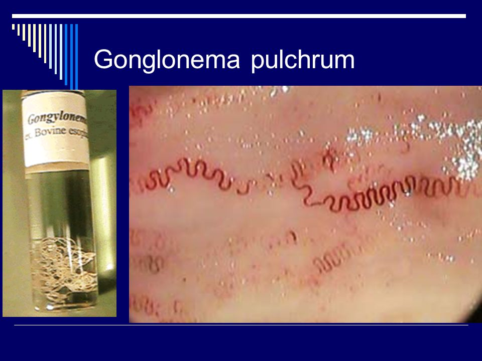 Gonglonema pulchrum