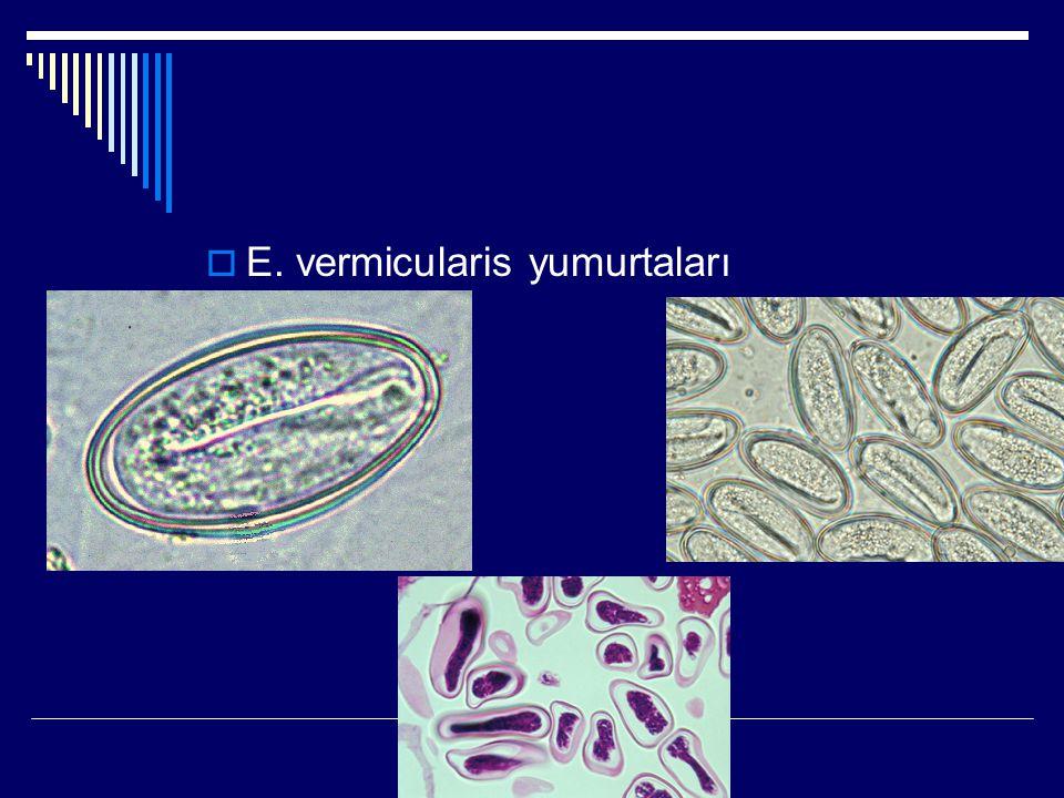E. vermicularis yumurtaları
