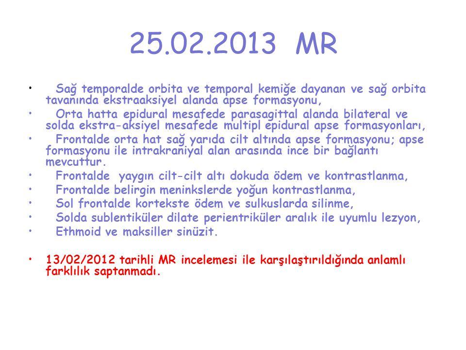 25.02.2013 MR Sağ temporalde orbita ve temporal kemiğe dayanan ve sağ orbita tavanında ekstraaksiyel alanda apse formasyonu,