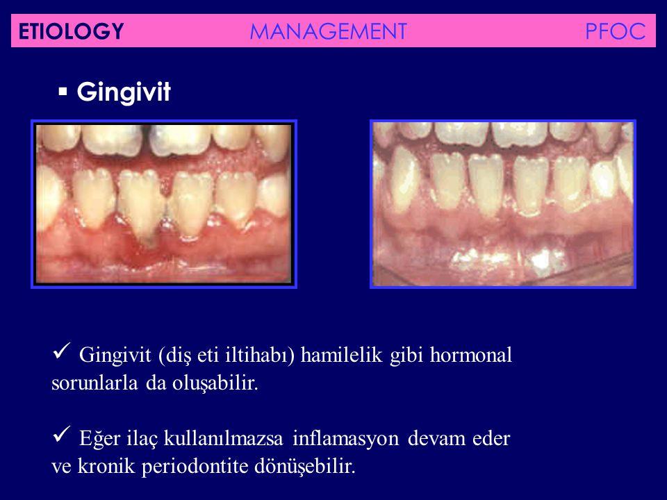 Gingivit (diş eti iltihabı) hamilelik gibi hormonal