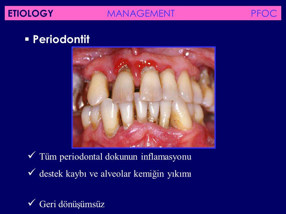  Tüm periodontal dokunun inflamasyonu
