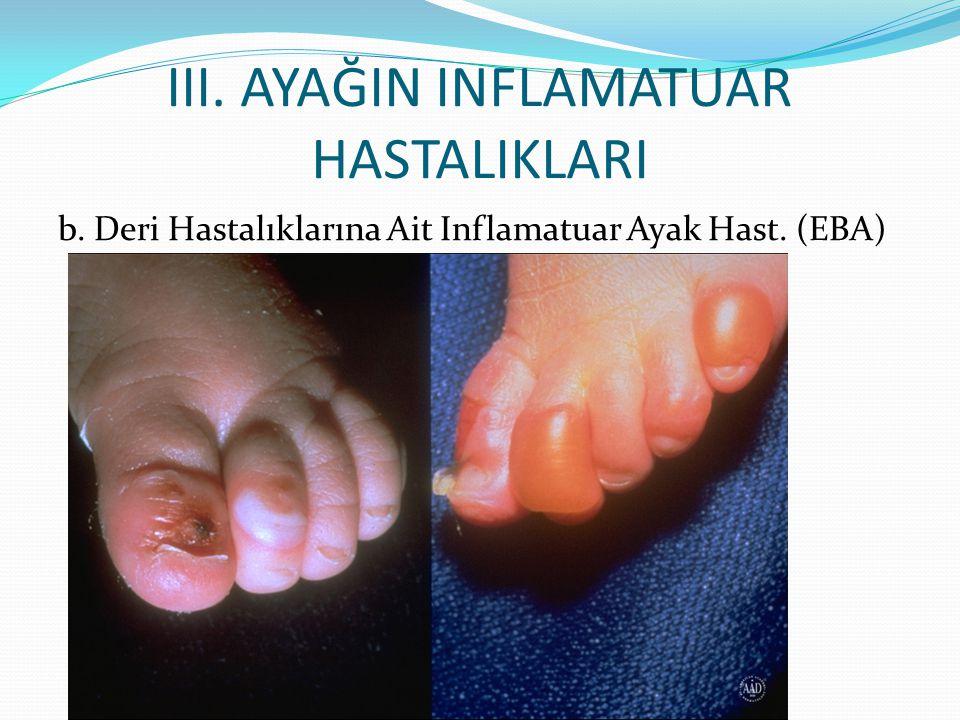 III. AyağIn Inflamatuar HastalIklarI