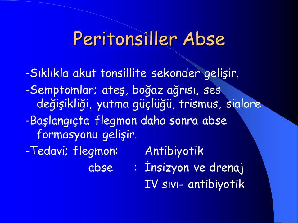 Peritonsiller Abse -Sıklıkla akut tonsillite sekonder gelişir.