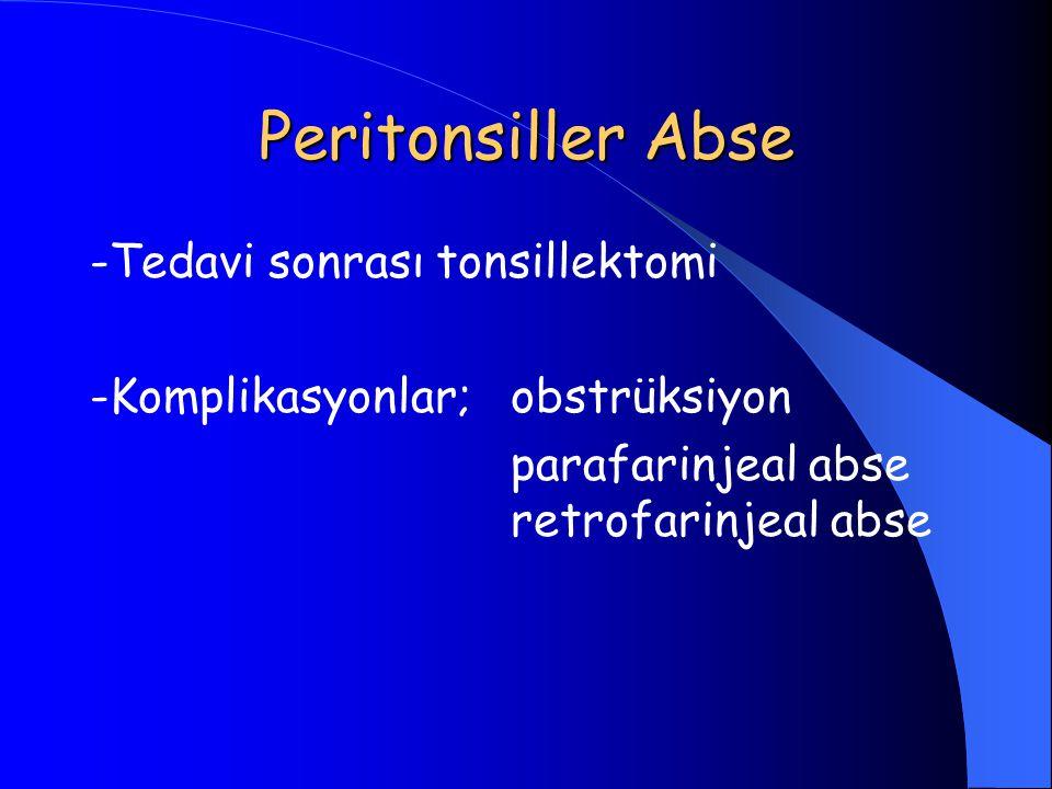 Peritonsiller Abse -Tedavi sonrası tonsillektomi