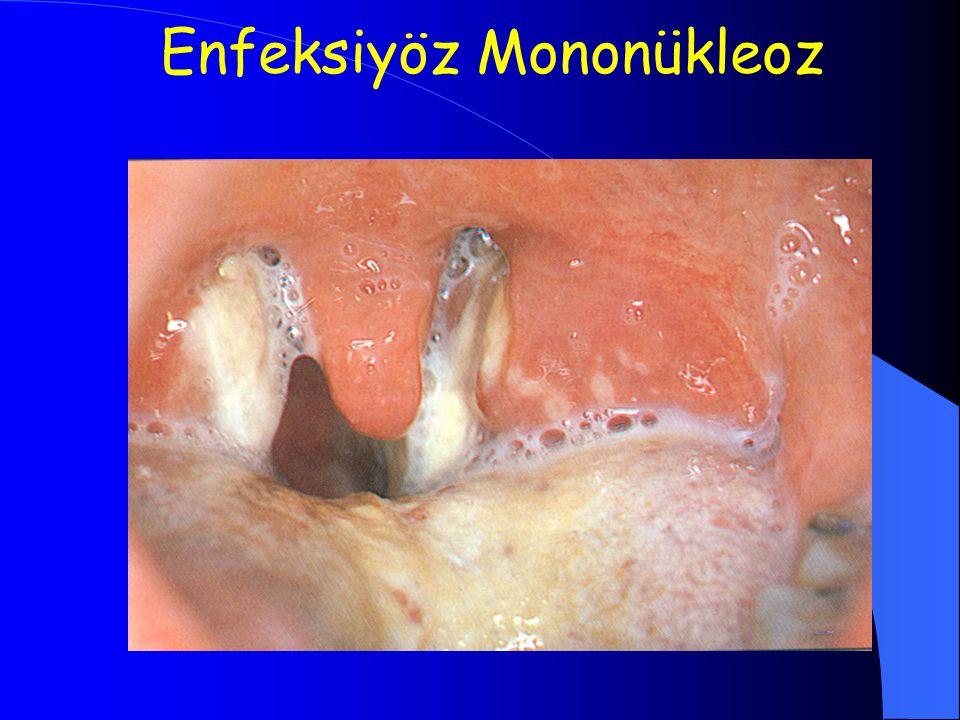 Enfeksiyöz Mononükleoz