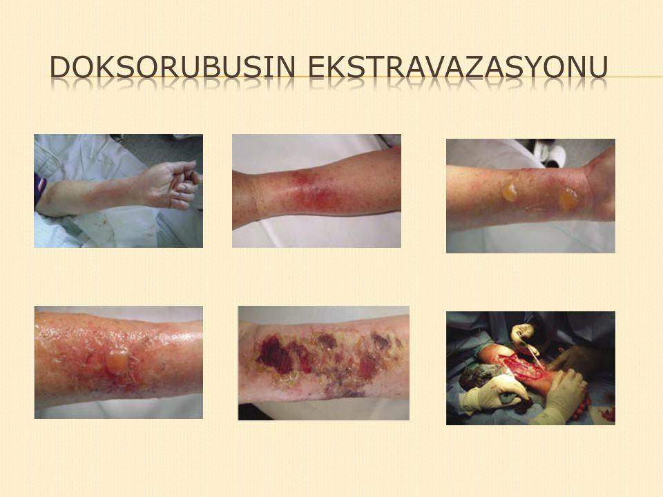 Doksorubusin Ekstravazasyonu