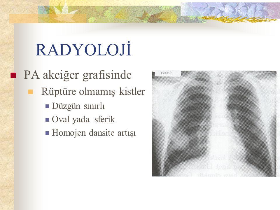RADYOLOJİ PA akciğer grafisinde Rüptüre olmamış kistler Düzgün sınırlı