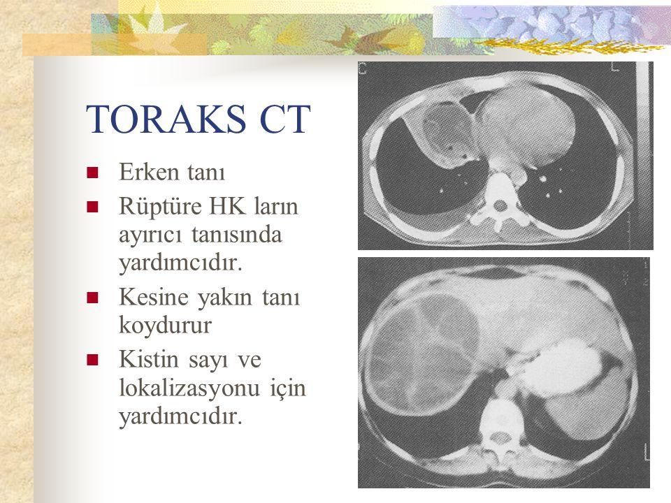 TORAKS CT Erken tanı Rüptüre HK ların ayırıcı tanısında yardımcıdır.