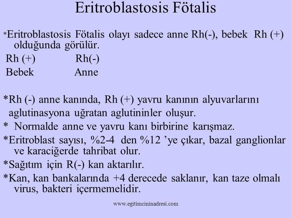 Eritroblastosis Fötalis