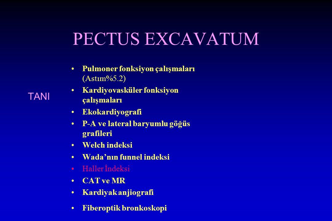 PECTUS EXCAVATUM TANI Pulmoner fonksiyon çalışmaları (Astım%5.2)