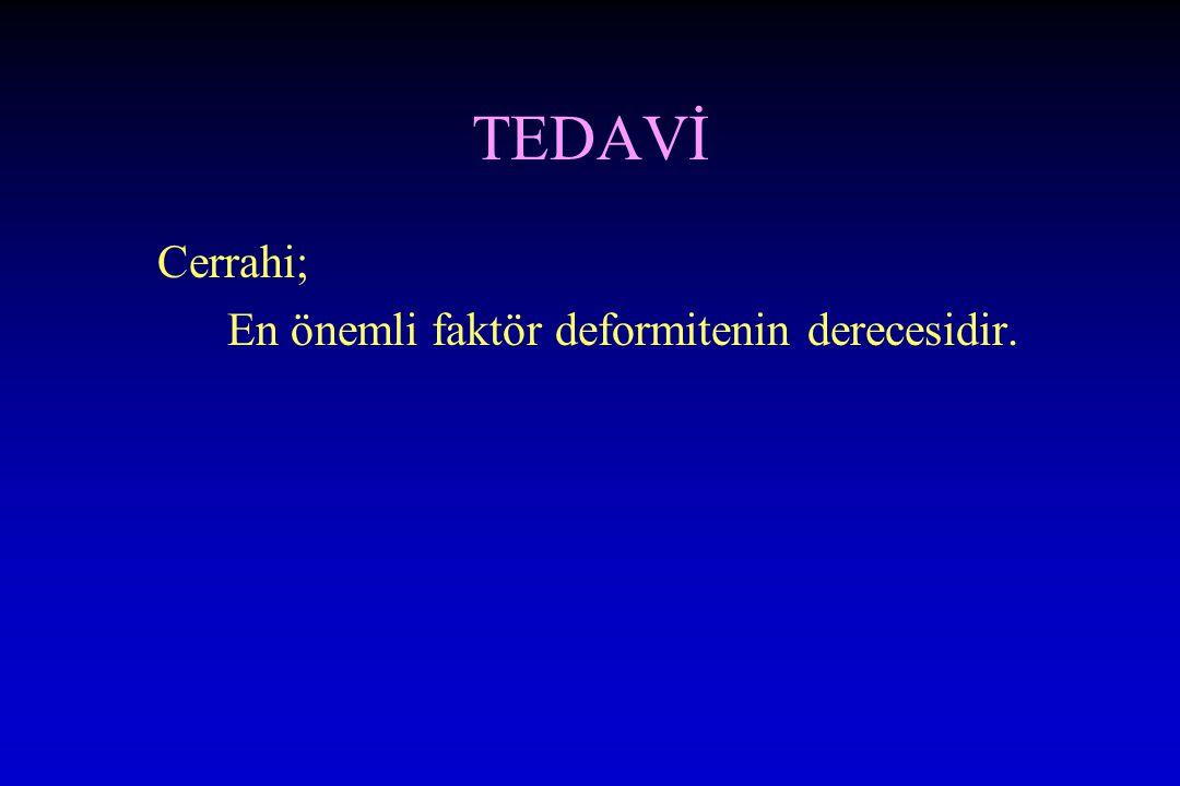TEDAVİ Cerrahi; En önemli faktör deformitenin derecesidir.