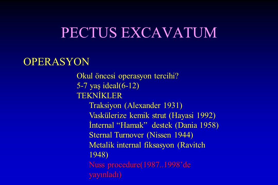 PECTUS EXCAVATUM OPERASYON Okul öncesi operasyon tercihi