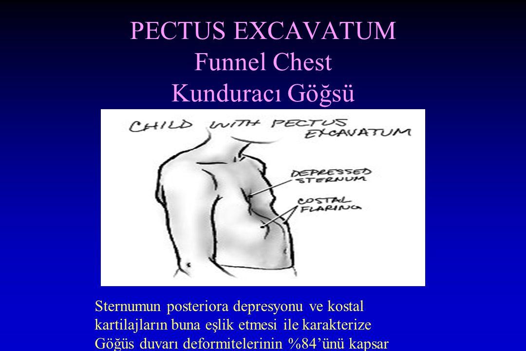 PECTUS EXCAVATUM Funnel Chest Kunduracı Göğsü
