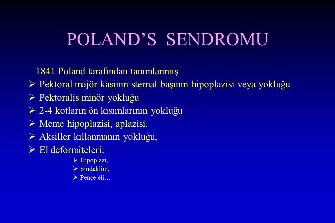 POLAND'S SENDROMU 1841 Poland tarafından tanımlanmış