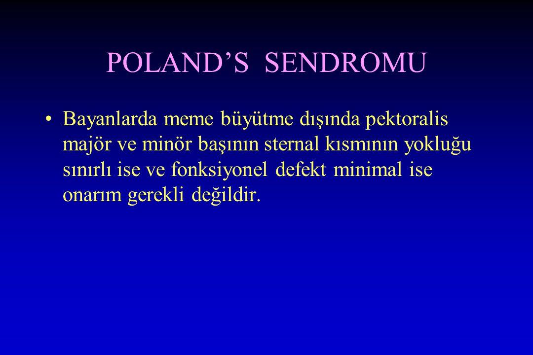 POLAND'S SENDROMU