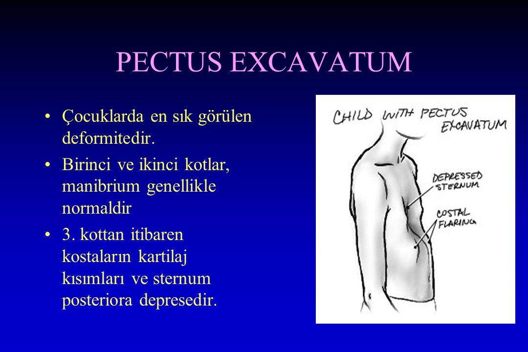 PECTUS EXCAVATUM Çocuklarda en sık görülen deformitedir.