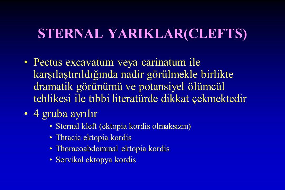 STERNAL YARIKLAR(CLEFTS)