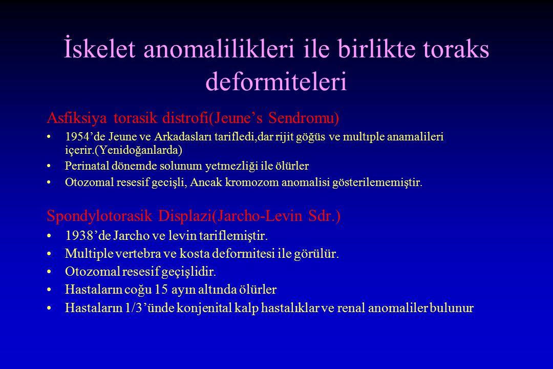İskelet anomalilikleri ile birlikte toraks deformiteleri