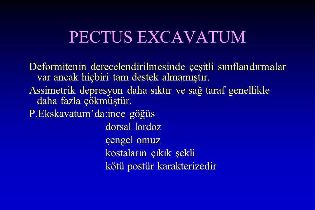 PECTUS EXCAVATUM Deformitenin derecelendirilmesinde çeşitli sınıflandırmalar var ancak hiçbiri tam destek almamıştır.
