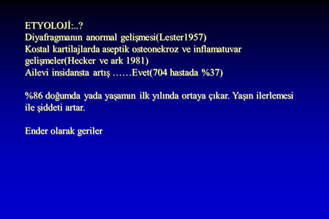 ETYOLOJİ:.. Diyafragmanın anormal gelişmesi(Lester1957) Kostal kartilajlarda aseptik osteonekroz ve inflamatuvar gelişmeler(Hecker ve ark 1981)