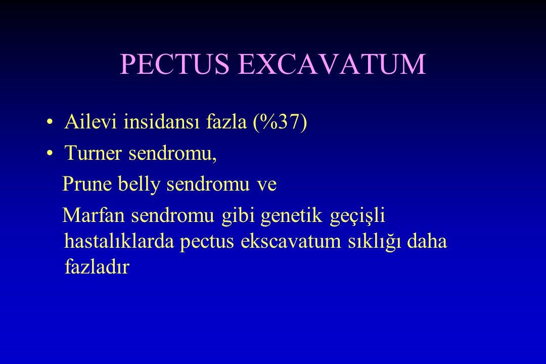 PECTUS EXCAVATUM Ailevi insidansı fazla (%37) Turner sendromu,