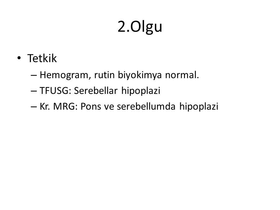 2.Olgu Tetkik Hemogram, rutin biyokimya normal.