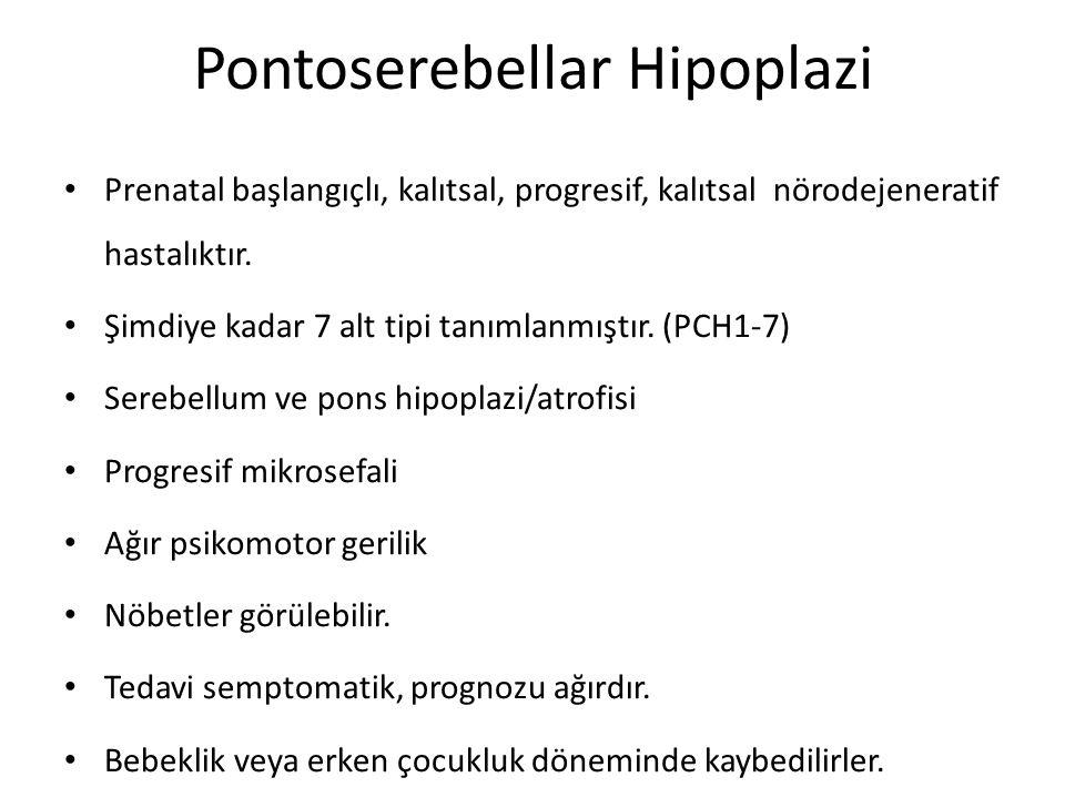 Pontoserebellar Hipoplazi